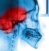 Umani di scansione a raggi x — Foto Stock