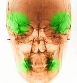 Film X-Ray scan human — Stock Photo