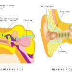 Постер, плакат: Ear hearing aid