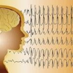 Medical background brain epilepsy — Stock Photo #61421789