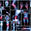 Collection X-ray multiple human's organ & orthopedic surgery & Multiple disease (Pulmonary tuberculosis , Gout , Rheumatoid arthritis ,Spondylosis , Fracture bone , Stroke , Brain tumor , etc) — Foto de Stock   #61191719