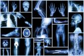 Collection X-ray multiple part of human & Orthopedic surgery & Multiple disease (Osteoarthritis knee,spondylosis,Stroke,Fracture bone,Pulmonary tuberculosis, etc) — Stock Photo