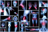 Collection X-ray multiple human's organ & orthopedic surgery & Multiple disease (Pulmonary tuberculosis , Gout , Rheumatoid arthritis ,Spondylosis , Fracture bone , Stroke , Brain tumor , etc) — Stock Photo
