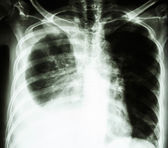 Pleural effusion due to lung cancer — Stock Photo