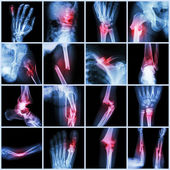 Collection X-ray multiple bone fracture (finger,spine,wrist,hip,leg,clavicle,ankle,elbow,arm,foot) — Stock Photo