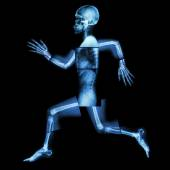 Aerobic Exercise (human bone is running) ,(Whole body x-ray : head ,neck ,shoulder ,shoulder ,arm ,elbow ,forearm ,hand ,finger ,joint ,thorax ,abdomen ,back,pelvis ,hip ,thigh ,leg ,knee ,foot ,heel) — Stock Photo
