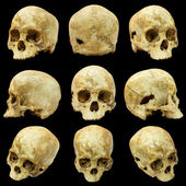 Collection of human skull (Mongoloid) and broken skull — Stock Photo