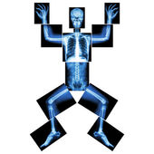 Jigsaw human x-ray ( whole body : head skull face neck spine shoulder arm elbow joint forearm wrist hand finger chest thorax heart lung rib abdomen back pelvis hip thigh knee leg ankle foot heel toe ) — Stock Photo