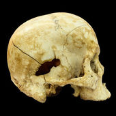 Human Skull Fracture(side) (Mongoloid,Asian) on isolated backgro — Stock Photo