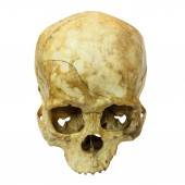 Human Skull Fracture(top side,apex)(Mongoloid,Asian) on isolated — Photo