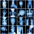 Collection X-ray part of child body ( Whole body : skull head neck face spine shoulder chest thorax lung heart abdomen arm elbow forearm hip pelvis thigh leg foot hand wrist ankle joint intestine etc) — Stock Photo #61329737