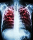 Gruźlica płuc — Zdjęcie stockowe