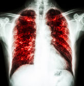 Pulmonary Tuberculosis — Stock Photo