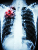 Mycobacterium tuberculosis infection (Pulmonary Tuberculosis) — Stock Photo