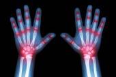 Rheumatoid arthritis ( X-ray both child hands and multiple joint arthritis ) — Stock Photo