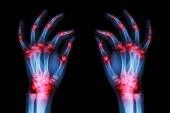Multiple joint arthritis both adult hands ( Gout , Rheumatoid ) on black background — Stock Photo