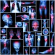Collection X-ray part of human,Orthopedic operation,Multiple disease (Fracture,Gout,Rheumatoid arthritis,Osteoarthritis knee,Stroke,Brain tumor,Scoliosis,Tuberculosis, etc.) — Stock Photo #61365441