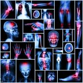 Collection X-ray part of human,Orthopedic operation,Multiple disease (Fracture,Gout,Rheumatoid arthritis,Osteoarthritis knee,Stroke,Brain tumor,Scoliosis,Tuberculosis, etc.) — Stock Photo