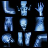 Collection X-ray part of child — Stock Photo