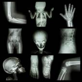 Collection X-ray part of child — Stockfoto