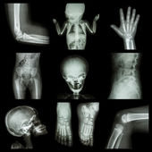 Collection X-ray part of child — Stok fotoğraf
