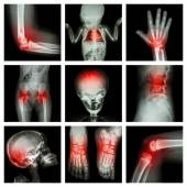 Collection X-ray part of child and multiple injury — Foto Stock