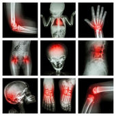 Collection X-ray part of child and multiple injury — Stockfoto