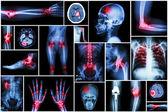 Collection x-ray multiple disease (arthritis,stroke,brain tumor,gout,rheumatoid,kidney stone,pulmonary tuberculosis,osteoarthritis knee, etc) — Stock Photo