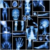 "Collection X-ray ""Multiple part of human"" ,""Orthopedic surgery"" and ""Multiple disease"" (Fracture,Shoulder dislocation,Osteoarthritis knee,Bronchiectasis,Lung disease,Stroke,Brain tumor, etc) — Stock Photo"