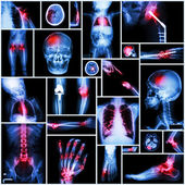 Collection of X-ray multiple part of human,Orthopedic operation and multiple disease (Shoulder dislocation,Stroke,Fracture,Gout,Rheumatoid arthritis,Bronchiectasis,Osteoarthritis knee, etc ) — Stock Photo