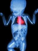 X-ray infant's body with heart disease — Stockfoto