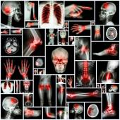 Collection X-ray multiple organ and arthritis at multiple joint (Rheumatoid,Gout) — Stock Photo