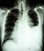 Pleural effusion at left lung due to lung cancer — Stock Photo