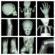 Collection x-ray part of child body (Version 2) — Stock Photo #61372443