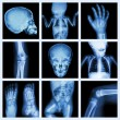 Collection x-ray part of child body (Version 2) — Stock Photo #61372449