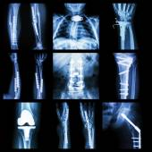 Collection of orthopedic operation — Stock Photo