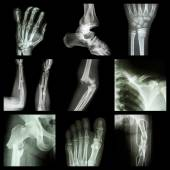 Collection of bone fracture — Stock Photo