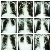 Collection of lung disease (Pulmonary tuberculosis,Pleural effusion,Bronchiectasis) — Stock Photo