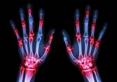 Film x-ray both human's hands and arthritis at multiple joint (Gout,Rheumatoid) — Stock Photo