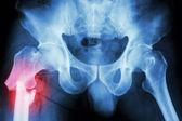 Fracture right femur (thigh's bone) — Foto Stock