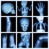 Collection x-ray part of child body (Version 2) — Stock Photo