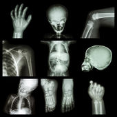 Collection x-ray part of child body — Stock Photo