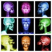 Collection of asian skull  — Stock Photo