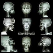 Collection of asian skull (Thai people) — Stock Photo