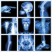 Collection X-ray part of human (Version 2) — Stock Photo