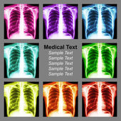 Multicolored chest x-ray background — Stock Photo