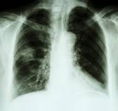 X-ray chest of lung cancer patient — Stock Photo