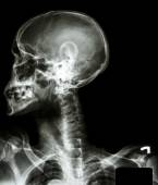 X-ray asian skull(thai people),cervical spine,both shoulder and  — Stock Photo