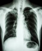 Pulmonary Tuberculosis — Stock Photo