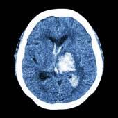 CT brain : show left thalamic hemorrhage (Hemorrhagic stroke) — Stock Photo